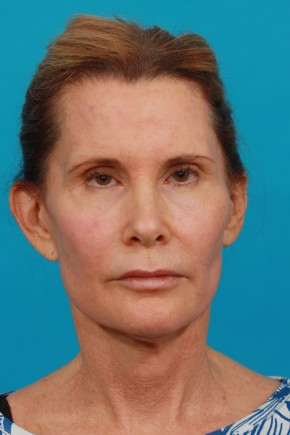 Before Photo - Facial Rejuvenation - Case #13262 - Secondary Face / Neck Lift - Frontal View