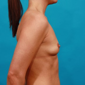 Before Photo - Breast Augmentation - Case #13263 - Silicone Breast Augmentation - Lateral View