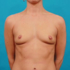 Before Photo - Breast Augmentation - Case #13263 - Silicone Breast Augmentation - Frontal View