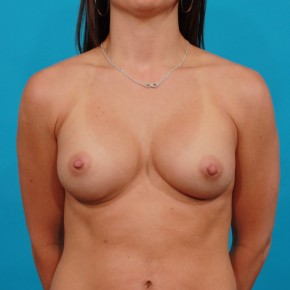 After Photo - Breast Augmentation - Case #13263 - Silicone Breast Augmentation - Frontal View