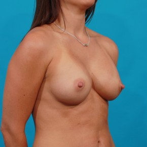 After Photo - Breast Augmentation - Case #13263 - Silicone Breast Augmentation - Oblique View