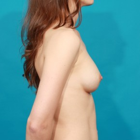After Photo - Breast Augmentation - Case #13264 - Silicone Breast Augmentation - Lateral View