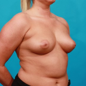 Before Photo - Breast Augmentation - Case #13265 - Silicone Breast Augmentation - Oblique View