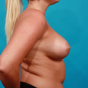 After Photo - Breast Augmentation - Case #13265 - Silicone Breast Augmentation - Lateral View