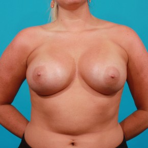 After Photo - Breast Augmentation - Case #13265 - Silicone Breast Augmentation - Frontal View