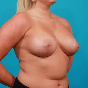 After Photo - Breast Augmentation - Case #13265 - Silicone Breast Augmentation - Oblique View