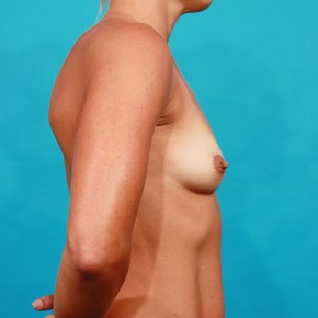 Before Photo - Breast Augmentation - Case #13266 - Silicone Breast Augmentation - Lateral View