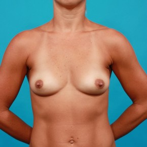 Before Photo - Breast Augmentation - Case #13266 - Silicone Breast Augmentation - Frontal View