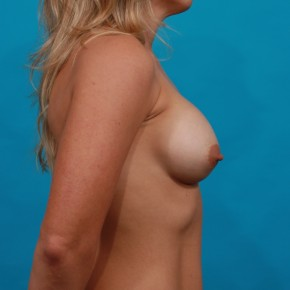 After Photo - Breast Augmentation - Case #13266 - Silicone Breast Augmentation - Lateral View
