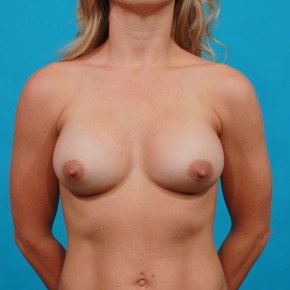 After Photo - Breast Augmentation - Case #13266 - Silicone Breast Augmentation - Frontal View