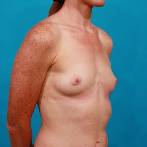 Before Photo - Breast Augmentation - Case #13267 - Silicone Breast Augmentation - Oblique View