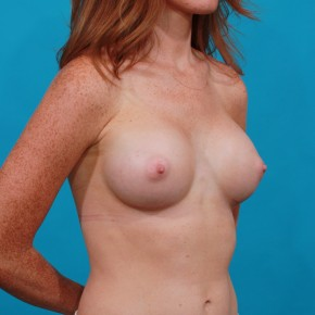 After Photo - Breast Augmentation - Case #13267 - Silicone Breast Augmentation - Oblique View
