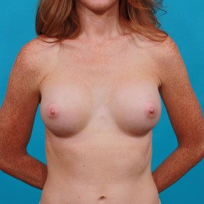 After Photo - Breast Augmentation - Case #13267 - Silicone Breast Augmentation - Frontal View
