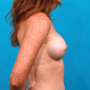 After Photo - Breast Augmentation - Case #13267 - Silicone Breast Augmentation - Lateral View