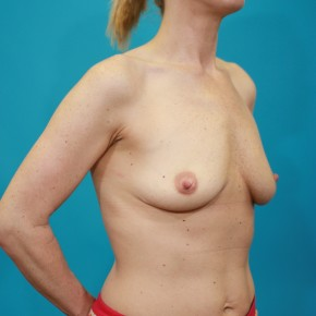 Before Photo - Breast Augmentation - Case #13268 - Silicone Breast Augmentation - Oblique View