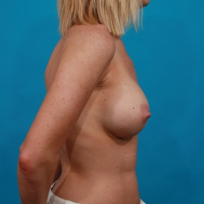 After Photo - Breast Augmentation - Case #13268 - Silicone Breast Augmentation - Lateral View