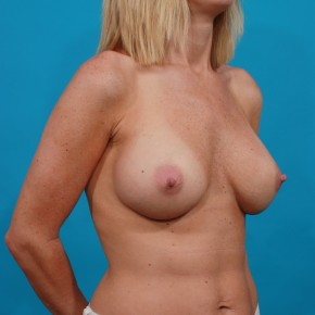 After Photo - Breast Augmentation - Case #13268 - Silicone Breast Augmentation - Oblique View