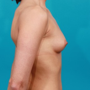 Before Photo - Breast Augmentation - Case #13269 - Silicone Breast Augmentation - Lateral View