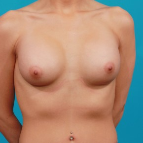 After Photo - Breast Augmentation - Case #13269 - Silicone Breast Augmentation - Frontal View