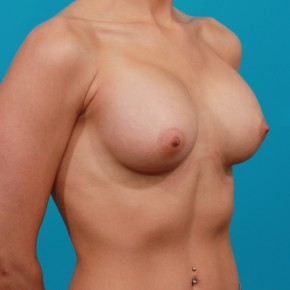 After Photo - Breast Augmentation - Case #13269 - Silicone Breast Augmentation - Oblique View