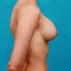 After Photo - Breast Augmentation - Case #13269 - Silicone Breast Augmentation - Lateral View