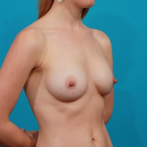 After Photo - Breast Augmentation - Case #13270 - Silicone Breast Augmentation - Oblique View