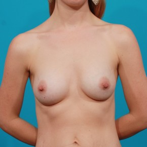 After Photo - Breast Augmentation - Case #13270 - Silicone Breast Augmentation - Frontal View