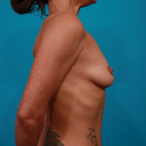 Before Photo - Breast Augmentation - Case #13271 - Silicone Breast Augmentation - Lateral View