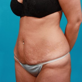 Before Photo - Tummy Tuck - Case #13273 - Abdominoplasty with Flank Lipo - Oblique View