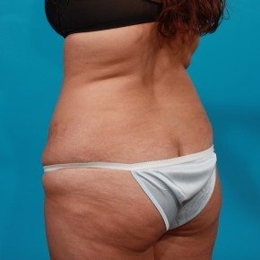 Before Photo - Tummy Tuck - Case #13273 - Abdominoplasty with Flank Lipo - Posterior Oblique View