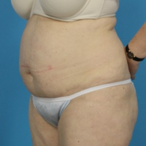 Before Photo - Tummy Tuck - Case #13274 - Abdominoplasty with Flank Lipo - Oblique View