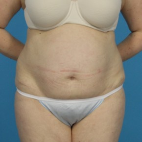 Before Photo - Tummy Tuck - Case #13274 - Abdominoplasty with Flank Lipo - Frontal View