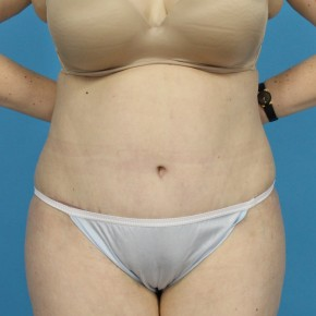 After Photo - Tummy Tuck - Case #13274 - Abdominoplasty with Flank Lipo - Frontal View