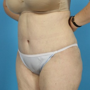 After Photo - Tummy Tuck - Case #13274 - Abdominoplasty with Flank Lipo - Oblique View