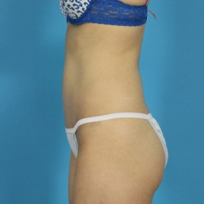 After Photo - Tummy Tuck - Case #13275 - Abdominoplasty - Lateral View