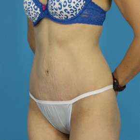 After Photo - Tummy Tuck - Case #13275 - Abdominoplasty - Oblique View