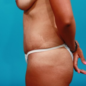 After Photo - Tummy Tuck - Case #13276 - Abdominoplasty - Lateral View