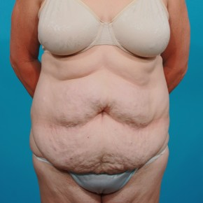 Before Photo - Tummy Tuck - Case #13277 - Abdominoplasty - Frontal View