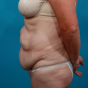 Before Photo - Tummy Tuck - Case #13277 - Abdominoplasty - Lateral View
