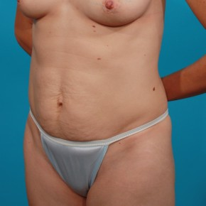Before Photo - Tummy Tuck - Case #13278 - Abdominoplasty - Oblique View