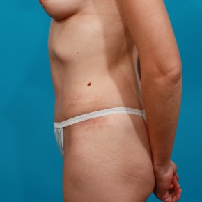 After Photo - Tummy Tuck - Case #13278 - Abdominoplasty - Lateral View