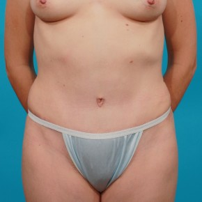 After Photo - Tummy Tuck - Case #13278 - Abdominoplasty - Frontal View