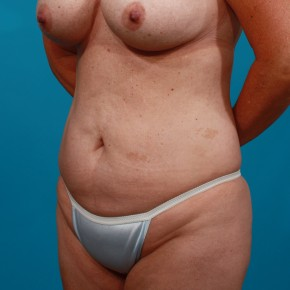 Before Photo - Tummy Tuck - Case #13279 - Abdominoplasty with Flank Lipo - Oblique View
