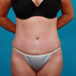 After Photo - Tummy Tuck - Case #13279 - Abdominoplasty with Flank Lipo - Frontal View