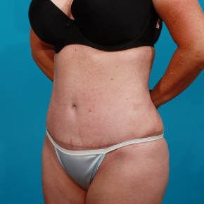 After Photo - Tummy Tuck - Case #13279 - Abdominoplasty with Flank Lipo - Oblique View