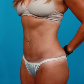 After Photo - Tummy Tuck - Case #13280 - Abdominoplasty with Flank Lipo - Oblique View