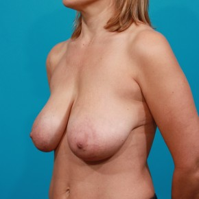 Before Photo - Breast Lift - Case #13282 - Oblique View