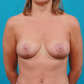 After Photo - Breast Lift - Case #13282 - Frontal View