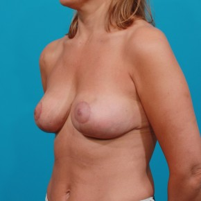After Photo - Breast Lift - Case #13282 - Oblique View