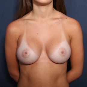 After Photo - Breast Augmentation - Case #13284 - 21 Year Old Female - Frontal View